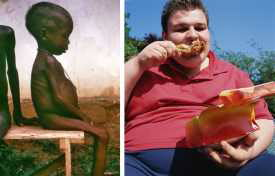 Obesity and Hunger